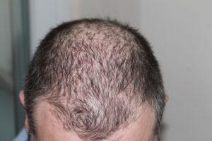 Cheveux clairsemés