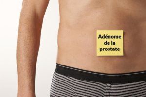 adenome-prostate-slip