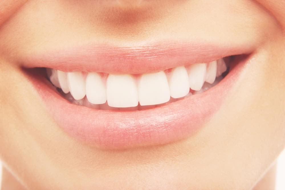 dents-blanche-sourire